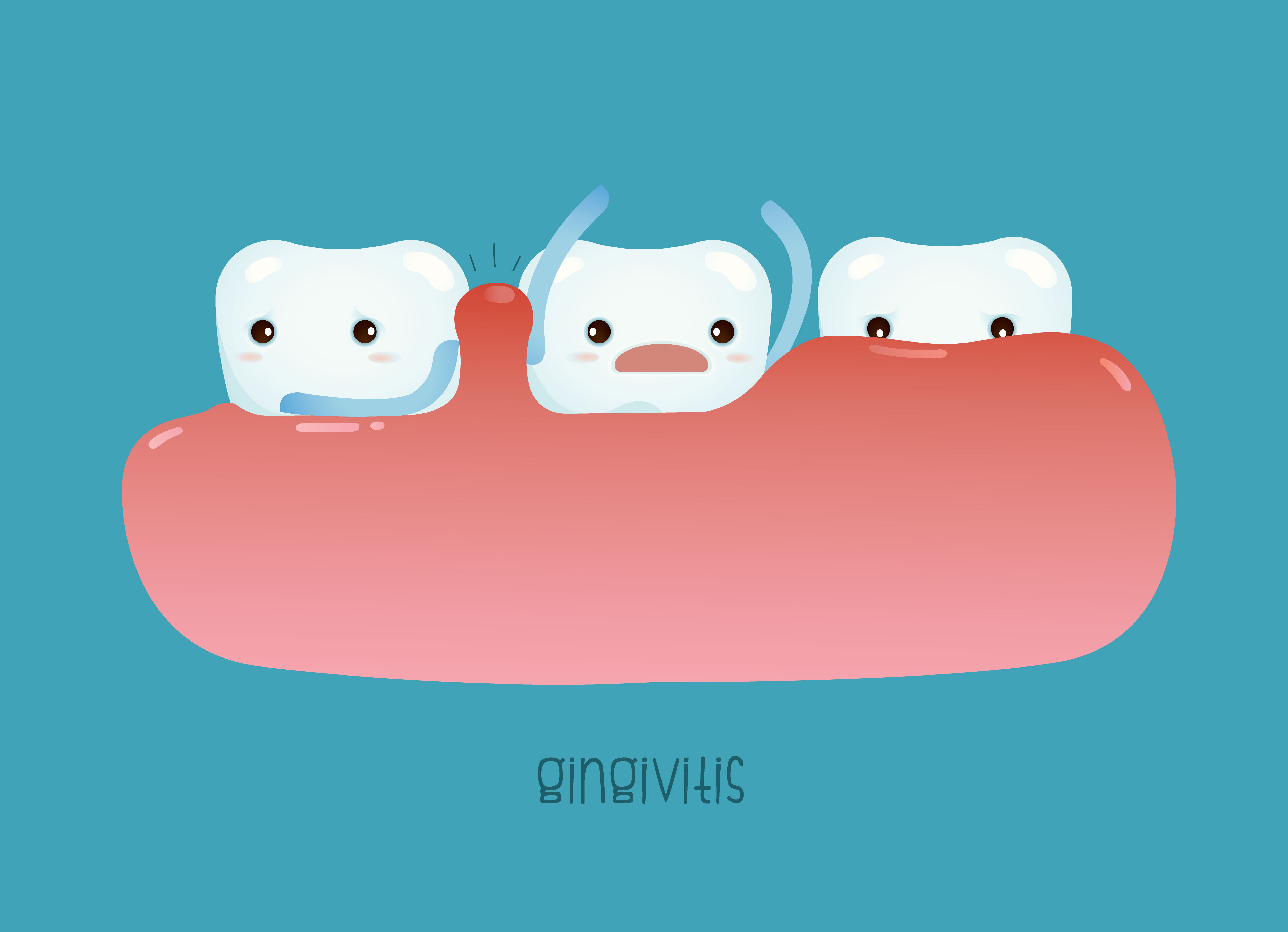 Everything You Need To Know About Gingivitis The Teal