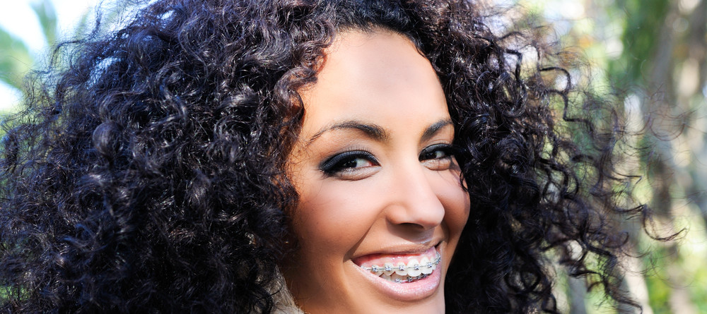 A woman with braces shows of her smile