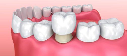 Crowns vs. Bridges vs. Dental Implants - Which Is for Me?